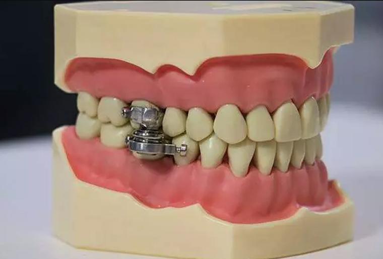 Pesquisadores criam dispositivo que impede abertura de boca e força dieta líquida para perder peso