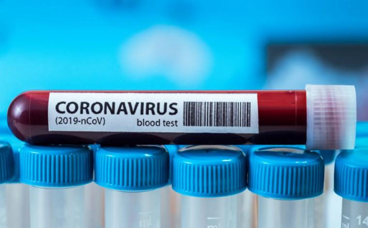 Boletim Epidemiológico: Sete Lagoas registra 2 óbitos e 45 novos casos de Covid-19 nas últimas 24h