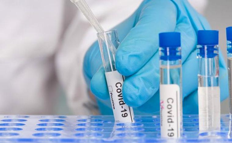 Boletim Epidemiológico: Sete Lagoas registra 12 casos de Covid e ocupação de leitos está em 22,8%