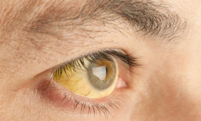 Minas muda contabilidade e 23 mortes de febre amarela são confirmadas