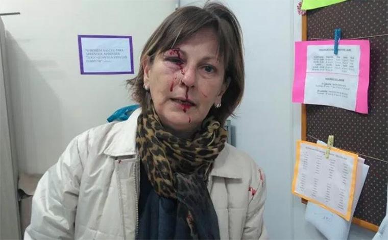 Foto publicada no Facebook por Márcia Friggi, professora da rede pública de ensino; Ela foi agredida com vários socos por um aluno, dentro da escola onde trabalha, em Santa Catarina
