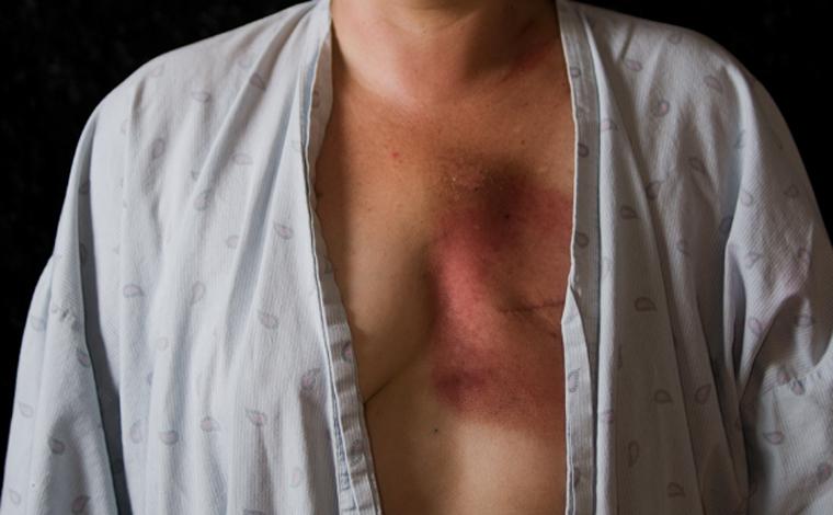 Paciente sofre retirada desnecessária de mama e será indenizada