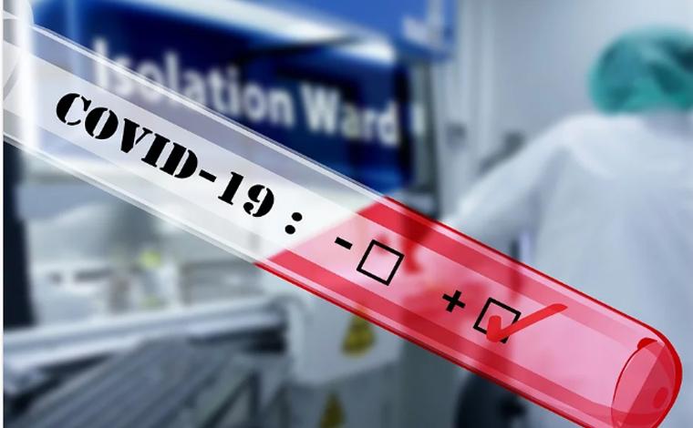 Boletim Epidemiológico: mais 18 novos casos de Covid-19 são registrados em Sete Lagoas