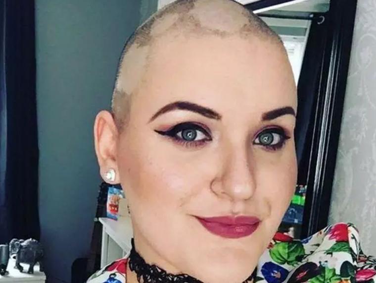 Mulher é presa por fingir ter câncer terminal para arrecadar dinheiro para casamento