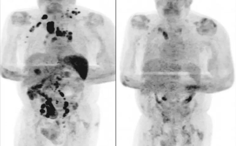 Homem tem redução de câncer em estágio avançado após contrair Covid-19