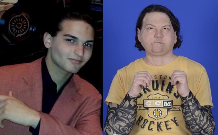 Vítima de acidente de carro recebe primeiro transplante de face e mãos nos EUA