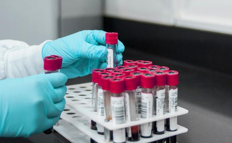 Boletim Epidemiológico: Sete Lagoas registra mais um óbito e 71 novos casos de Covid-19
