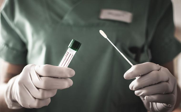 Boletim Epidemiológico: Sete Lagoas registra 2 óbitos e 54 novos casos de Covid-19