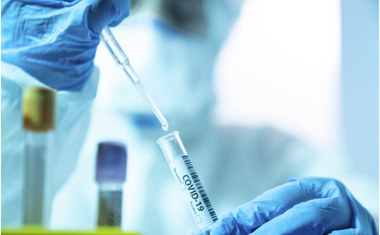 Boletim Epidemiológico: mais duas mortes por coronavírus são registradas em Sete Lagoas